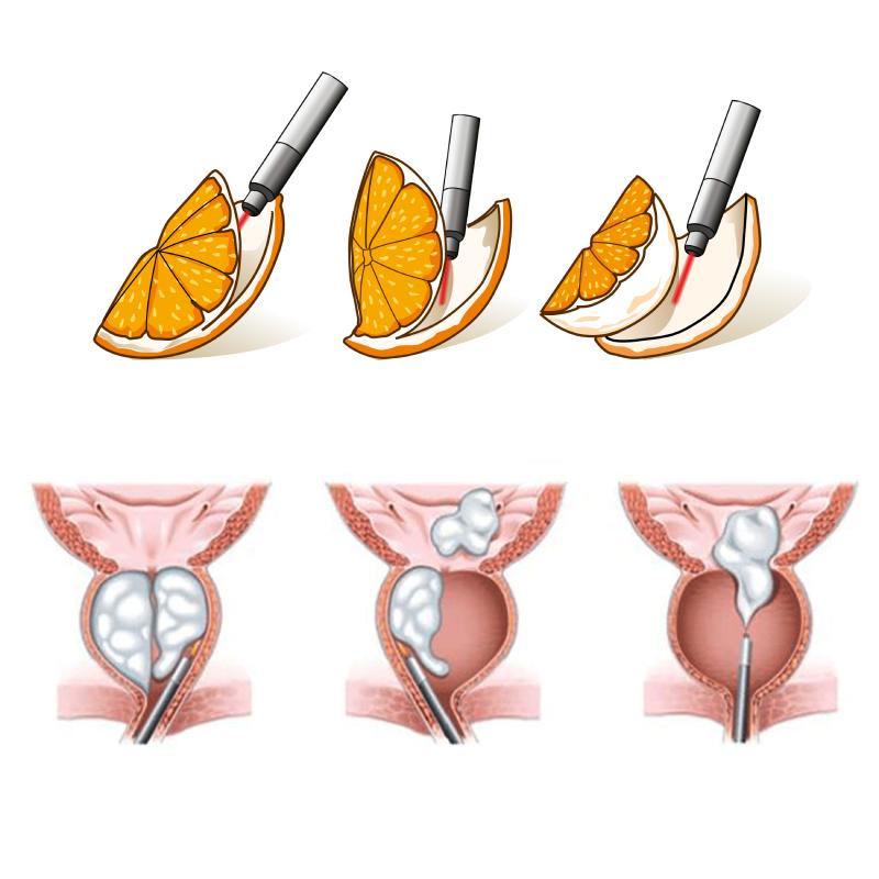 Helmintox tableta - Hpv tedavisi sonras cinsel iliski